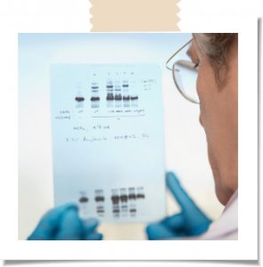 DN Profile 296x300 - How does DNA testing work?