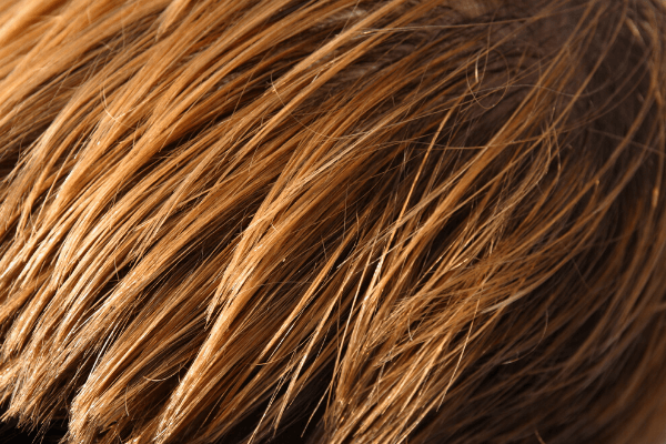 Can I get allergy testing using a hair sample?