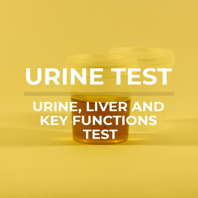 urine washed new 400x400 - Home Urine Health Test