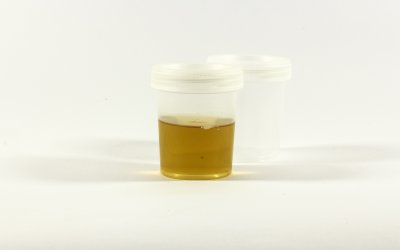 Urine Analysis – What You Can See In Your Pee!